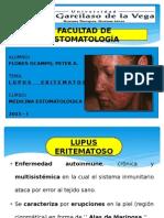 Lupus Eritematoso ( Expo )