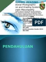 Jurding Klasifikasi Myopic Maculopathy