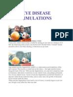 eye disease simulations