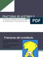 Fracturas de Acetábulo