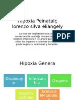 Hipoxia Peinatal