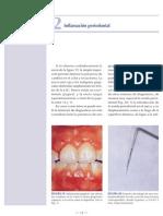 a3 Inflamacion Periodontal