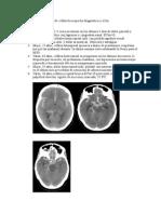 Clase Neurologia