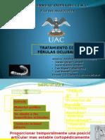 tratamiento con ferulas oclusales para la disfuncion temporo mandibular