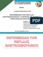 Enfermedad Por Reflujo Gastroesofágico Hh