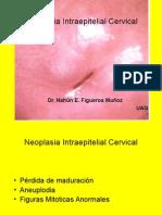 Histerectomia Radical