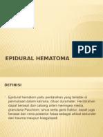 CT Scan Epidural Hematoma