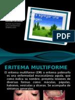 Expo Patologia Entrega 15