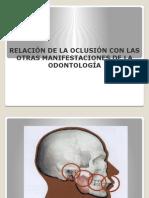 Presentacion de Oclusion
