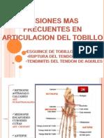 Lesiones en Tobillo