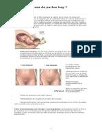 Clases de Partos Parto Prematuro Post Parto Ciclo Menstrual
