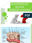 Herpes Zoster Ppt