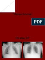 radiologi Thorax Normal