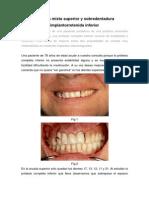 Implantes y Ataches Caso Clinico