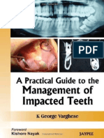 A Practical Guide to the Management of Impacted Teeth - Jaypee Brothers_ 1 Edition (December 2008)