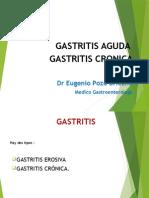 Gastritis Clases