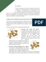 Ruturas de Huesos (femur, cadera, humero)