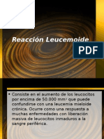 Reacción Leucemoide1