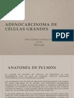 Adenocarcinoma de Cel Grandes