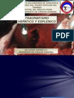 Anastomosis Intestinales
