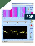 Scanner 2014  MTBS 1000.pdf