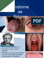 Enferm Sindrome de Sjogren