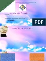 Tumor de Ovario1