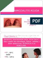 faringoamigdalitis-090305185725-phpapp01