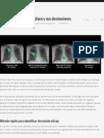 Cómo calcular el eje cardíaco y sus desviaciones. | Sapiens Medicus