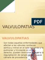 Valvulopatias Terminado
