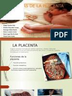 Anomalias Placenta