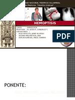 SEMINARIO HEMOPTISIS