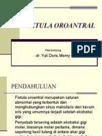 Fistula Oroantral