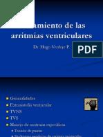 Tratamiento Arritmias Ventriculares