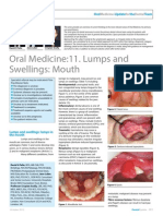 Dent Update 2013. Oral Medicine 11. Lumps Swellings - Mouth