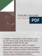 fissure sealant ppt.pptx