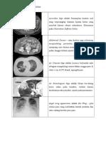 New_Tugas Radiologi 2. Sign