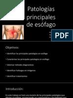 pptpatologaesofagofinal1-140705124452-phpapp01 (1) (1).pdf