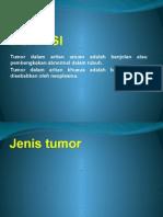 Tumor Intra Abdomen