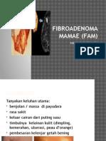 Fibroadenoma Mamae (Fam)-Hana
