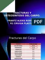 Fracturas de Radiocubital Distal y Carpo