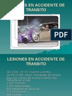 Lesiones en Accidente de Transito Favm
