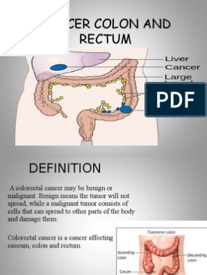 Cancer Colon And Rectum Wardah Ppt Colorectal Cancer Gastroenterology