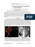 Evaluation of a Fused Supernumerary Kidney Using MDCT