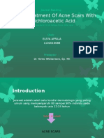 CROSS Treatment Of Acne Scars With Trichloroacetic Acid