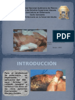 Proceso de atencion de enfermeria de un paciente quemado (quemado PAE)