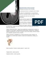 intracraneal (1)