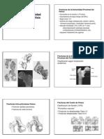 Fractura Femur Proximal