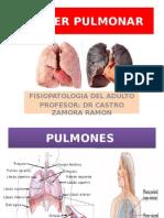 CANCER-PULMONAR.pptx