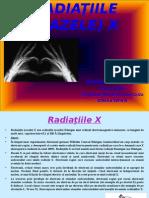 Radiatiile (Razele) X